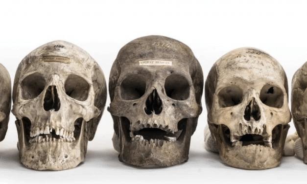 Human remains sold on secret Instagram black market for thousands