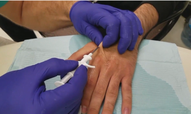 Would you consider having an implant in your hand?