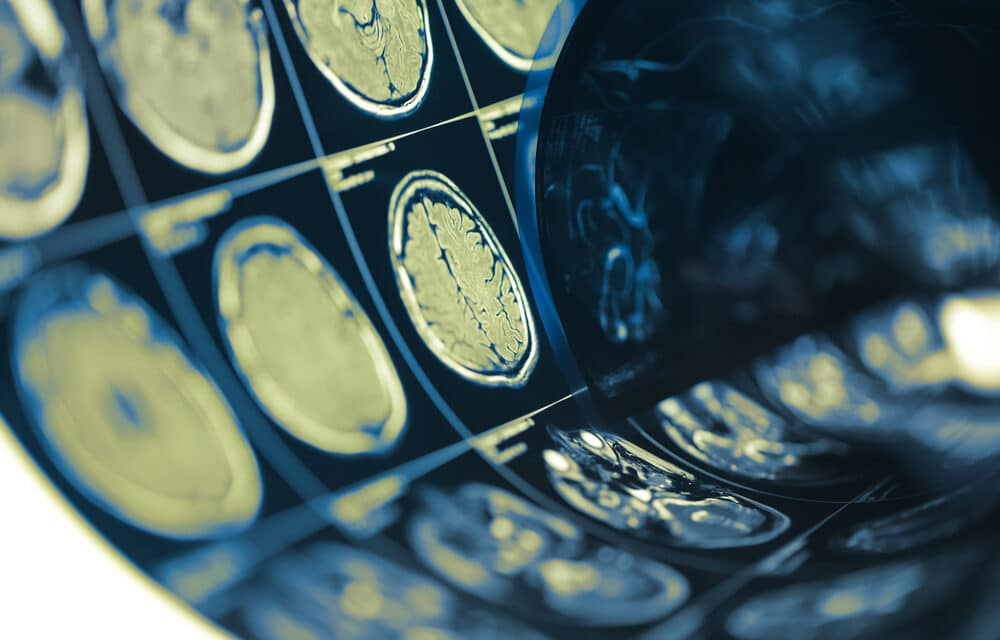 Doctors trying to figure out source of mystery brain disease in Canada